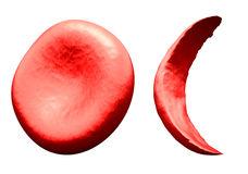 normaal-versus-sikkelrode-bloedcel-44305089